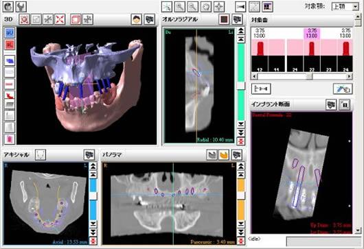 インプラント埋入位置シミュレーション画像