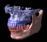 研究用模型の合成画像