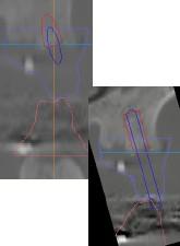バーチャル咬合器画像