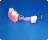 前歯と奥歯の部分入歯