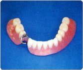 自分の歯が一本だけ残っている部分入歯