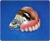 自分の歯が2本残っている上アゴの部分入歯