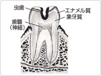 象牙質まで進んだ虫歯