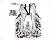 神経まで及んだ虫歯
