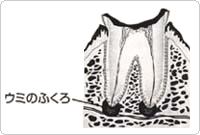 根っこまで進んでしまった虫歯