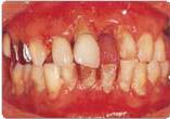 歯周病の症状の写真