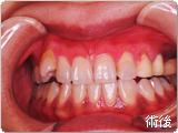 歯肉の黒ずみ(メラニン色素)の除去