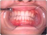 特殊パウダーを用いての歯のクリーニング