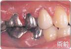 歯周病のレーザー治療(前)