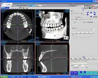 モニターに表示されたCT撮影された顎、歯列の写真