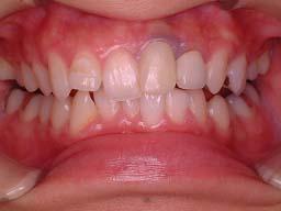 ホワイトニング、前歯部の奥に入った歯を1本のみ矯正治療写真