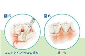 歯周病治療の順序