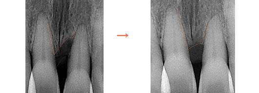歯周病治療前後のレントゲン写真