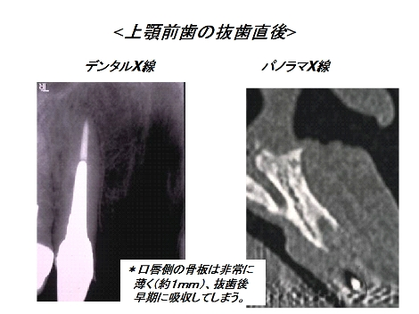 デジタルX線写真とパノラマX線写真