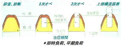 インプラント治療手順の画像