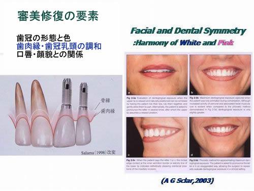 審美修復の要素 歯冠の形態と色、歯肉縁・歯冠乳頭の調和、口唇・顔貌との関係