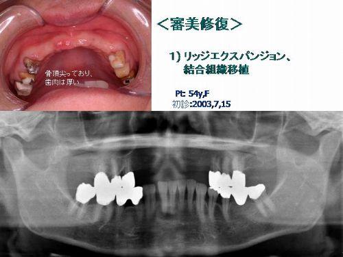 審美修復 1)リッジエクスパンジョン、結合組織移植