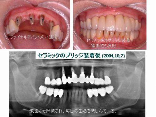 ファイナルアバットメント連結、セラミックのブリッジ装着:審美性も良好 セラミックのブリッジ装着後(2004.10.7):義歯から解放され、毎日の生活を楽しんでいる。