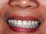 手術直後(下顎)の写真