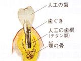 インプラントの構成