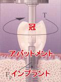 歯科インプラントの3つの要素