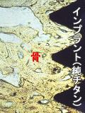 インプラントと骨の結合写真
