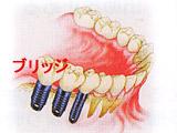 2歯以上欠損