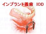 全歯欠損2