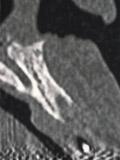 Medical CT画像