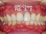 左上中切歯の抜歯即時埋入、即時修復の写真