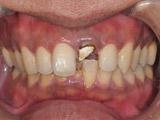 左上中切歯の抜歯即時埋入、即時修復の術前写真