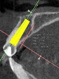 左上中切歯(横断面)仮想インプラント画像