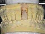 仮歯Provisional Crown