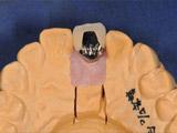 左上中切歯(水平面)レントゲン写真