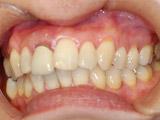 右側上顎中切歯の即時埋入、即時修復の術前写真
