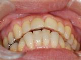 本歯の装着(6か月後)の写真