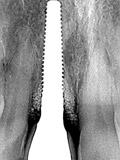 本歯の装着(6か月後)のレントゲン画像