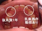 初診時の口腔内写真