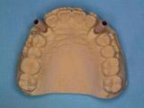 技工室での仮歯の製作写真