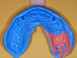 本歯作成のための型取り写真