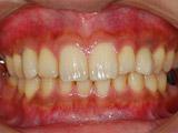 オペ9か月後の本歯の装着写真