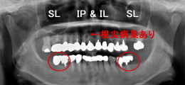 手術前のレントゲン画像