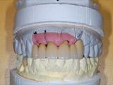 仮歯の写真