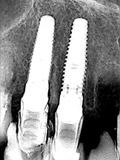 術後X線右上第1小臼歯と犬歯部画像