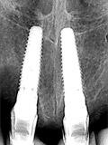 術後X線上顎左右中切歯部画像
