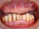 上下顎大臼歯抜歯後1か月の写真