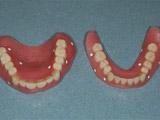 義歯の写真