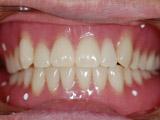 義歯の装着写真