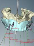 ノーベルガイドの設計画像(上顎中切歯部)
