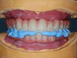 オペ前のノーベルガイドによる当院での仮歯の作製